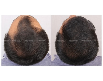 100Hair-Transplant-male-before-after-4000-hair-grafts-3