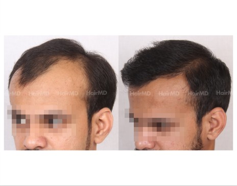 101Hair-Transplant-male-before-after-4000-hair-grafts-4