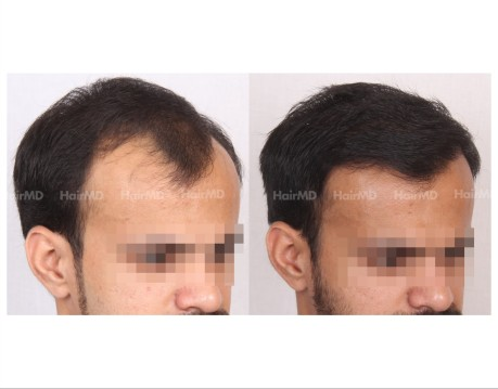 102Hair-Transplant-male-before-after-4000-hair-grafts-5