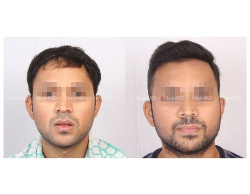 103Hair-Transplant-male-before-after-3000-hair-grafts-1