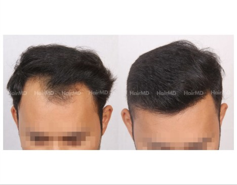 104Hair-Transplant-male-before-after-3000-hair-grafts-2