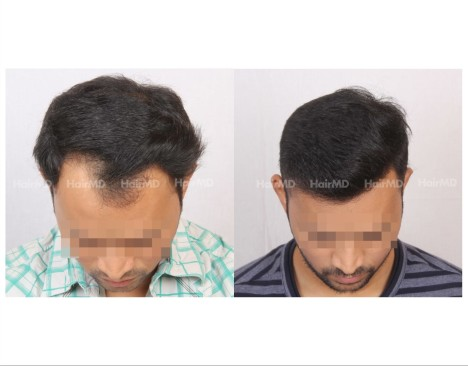 105Hair-Transplant-male-before-after-3000-hair-grafts-3