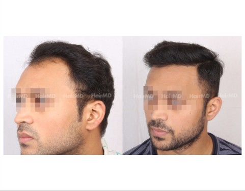 106Hair-Transplant-male-before-after-3000-hair-grafts-4