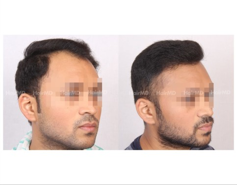 107Hair-Transplant-male-before-after-3000-hair-grafts-5
