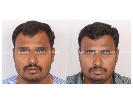 108Hair-Transplant-male-before-after-5000-hair-grafts-12