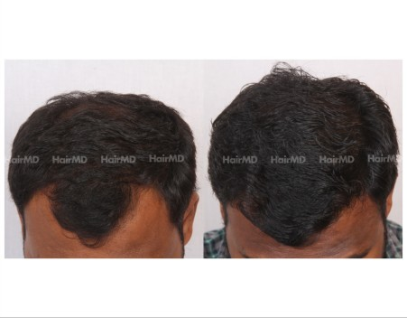 109Hair-Transplant-male-before-after-5000-hair-grafts-13