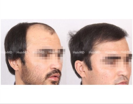 10Hair-Transplant-male-before-after-5000-hair-grafts-5