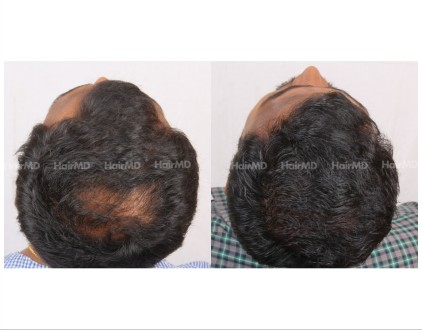 110Hair-Transplant-male-before-after-5000-hair-grafts-14