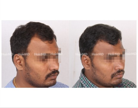 112Hair-Transplant-male-before-after-5000-hair-grafts-16