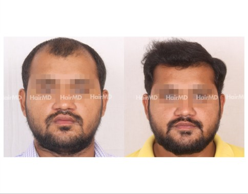 113Hair-Transplant-male-before-after-6000-hair-grafts-25