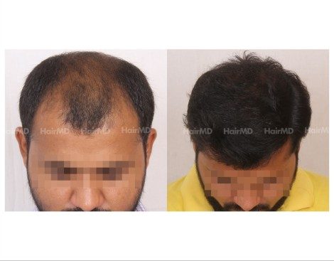 114Hair-Transplant-male-before-after-6000-hair-grafts-28