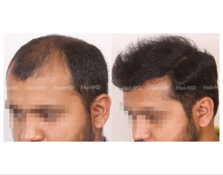 116Hair-Transplant-male-before-after-6000-hair-grafts-29