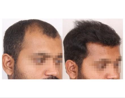 117Hair-Transplant-male-before-after-6000-hair-grafts-27