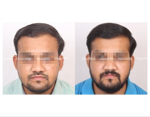 118Hair-Transplant-male-before-after-6000-hair-grafts-21