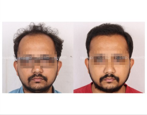 11Hair-Transplant-male-before-after-3000-hair-grafts-25