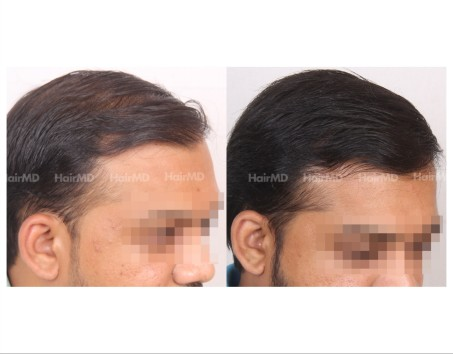 121Hair-Transplant-male-before-after-6000-hair-grafts-22
