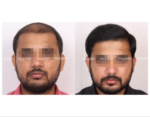 122Hair-Transplant-male-before-after-6000-hair-grafts-15