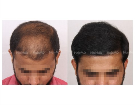 123Hair-Transplant-male-before-after-6000-hair-grafts-18