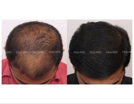 124Hair-Transplant-male-before-after-6000-hair-grafts-20