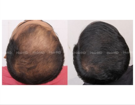 125Hair-Transplant-male-before-after-6000-hair-grafts-19