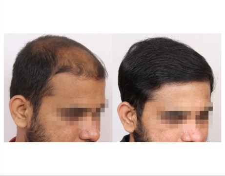 126Hair-Transplant-male-before-after-6000-hair-grafts-17