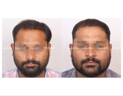 128Hair-Transplant-male-before-after-6000-hair-grafts-12