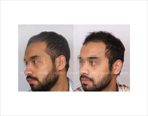 12Hair-Loss-male-before-and-after-result-3