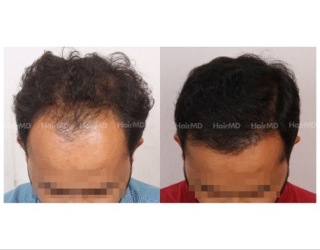 12Hair-Transplant-male-before-after-3000-hair-grafts-26