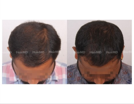 130Hair-Transplant-male-before-after-6000-hair-grafts-14