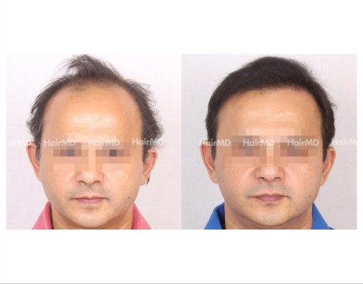 131Hair-Transplant-male-before-after-6000-hair-grafts-9