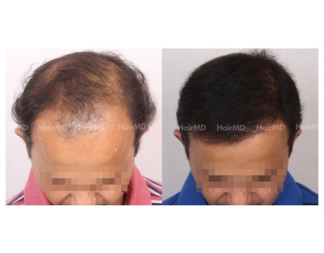 132Hair-Transplant-male-before-after-6000-hair-grafts-10