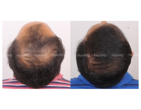 133Hair-Transplant-male-before-after-6000-hair-grafts-11