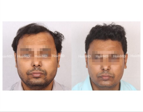 134Hair-Transplant-male-before-after-6000-hair-grafts-3