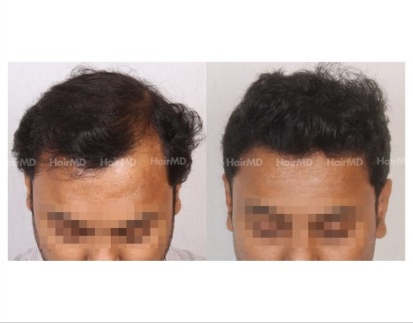 135Hair-Transplant-male-before-after-6000-hair-grafts-4