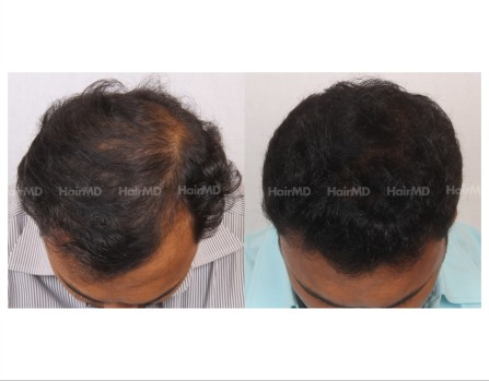 136Hair-Transplant-male-before-after-6000-hair-grafts-5