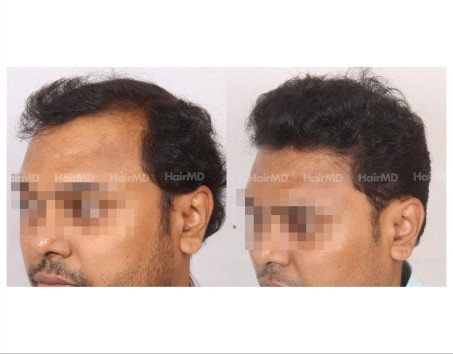 138Hair-Transplant-male-before-after-6000-hair-grafts-6