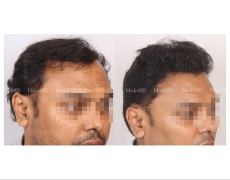 139Hair-Transplant-male-before-after-6000-hair-grafts-7