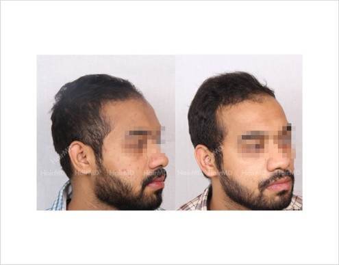 13Hair-Loss-male-before-and-after-result-2