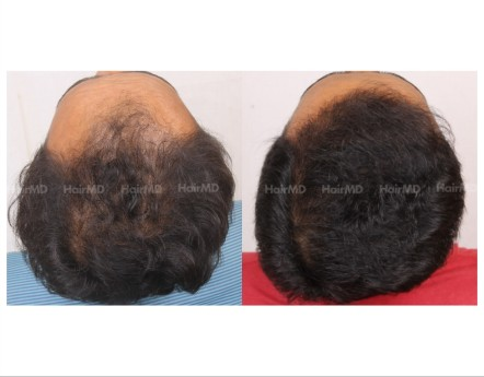 13Hair-Transplant-male-before-after-3000-hair-grafts-27