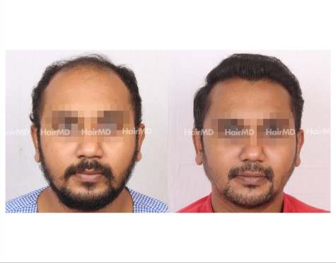 140Hair-Transplant-male-before-after-6000-hair-grafts