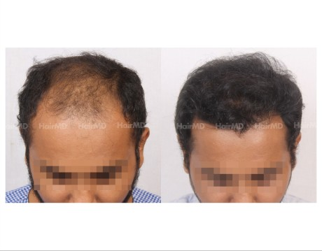 141Hair-Transplant-male-before-after-6000-hair-grafts-2