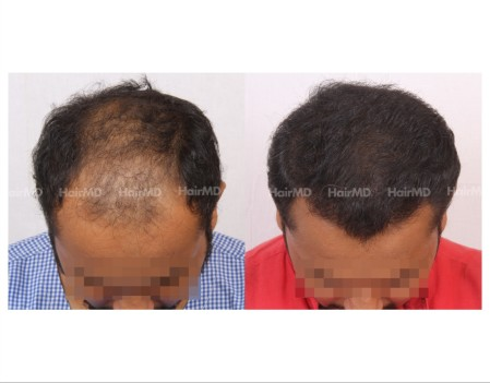 142Hair-Transplant-male-before-after-6000-hair-grafts-1