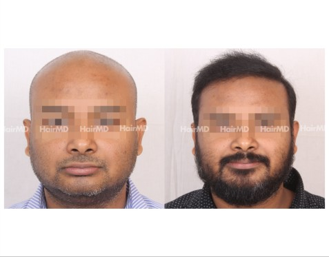 143Hair-Transplant-male-before-after-8000-hair-grafts-9