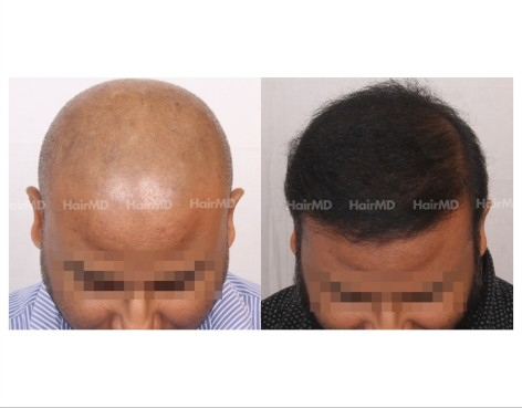 144Hair-Transplant-male-before-after-8000-hair-grafts-11