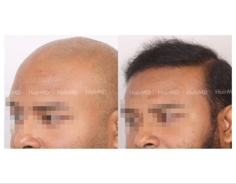 146Hair-Transplant-male-before-after-8000-hair-grafts-13