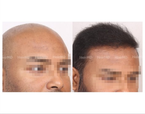 147Hair-Transplant-male-before-after-8000-hair-grafts-12