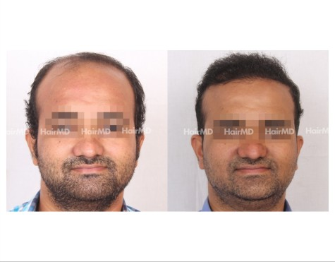 148Hair-Transplant-male-before-after-8000-hair-grafts-4