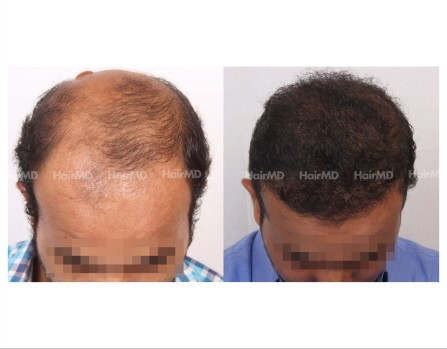 149Hair-Transplant-male-before-after-8000-hair-grafts-5