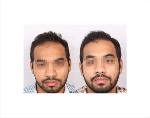 14Hair-Loss-male-before-and-after-result-1