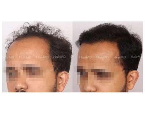 14Hair-Transplant-male-before-after-3000-hair-grafts-28